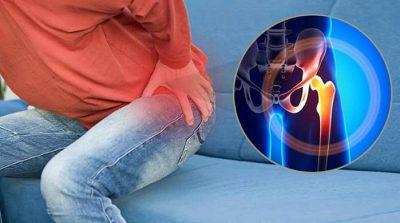آرتروز لگن ، درمان انواع آرتروز مفصل هیپ با دارو ،کنترل وزن و ورزش