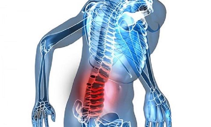 اختلال در عملکرد مفصل ساکروایلیاک بعلت آسیب ستون فقرات پایین کمر