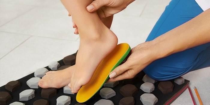 ارتز یا کفیهای طبی سفارشی برای درمان درد پاشنه پا