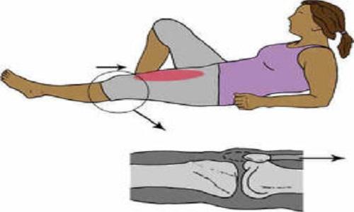 استحکام- عضلات چهار سر، ایزومتریک