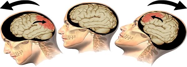 انواع اصلی آسیب به سر