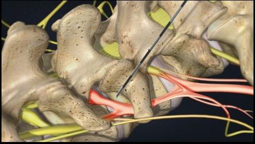 بلوک مفصل فاست برای کنترل کمر درد