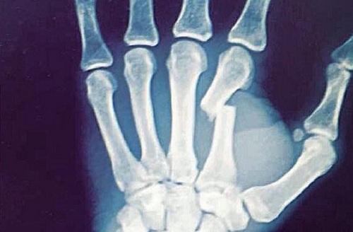 تشخیص شکستگی دست