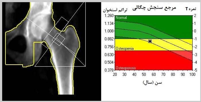 تفسیر نتایج رادیولوژی