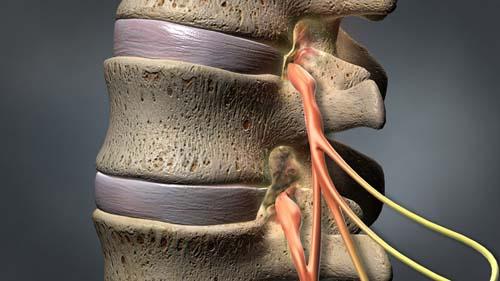تنگی کانال نخاعی(میلوپاتی) کمر و گردن