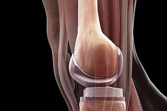 توانبخشی پس از جراحی تعویض مفصل زانو