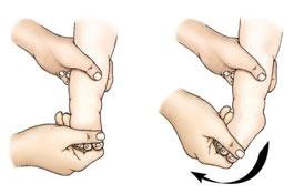 درمانهای-دستی-پا-چنبری