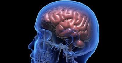 درمان انواع سکته مغزی هموراژیک با توانبخشی و فیزیوتراپی