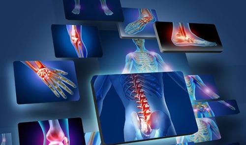 درمان روماتیسم مفصلی همراه با درد،تورم و گرفتگی مفاصل بیش از6 هفته