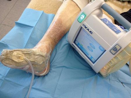 درمان زخم با فشار منفی