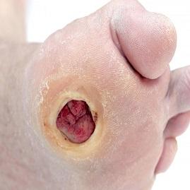 درمان زخم پای دیابتی و جلوگیری از گسترش عفونت با دارو و طب فیزیکی