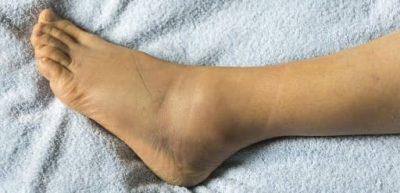 درمان سریع ورم پا در اثر ضربه،نشستن طولانی مدت و برخی از داروها
