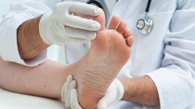 درمان نقرس (تجمع و رسوب اسید اوریک در بافت های بدن) با دارو و تغذیه