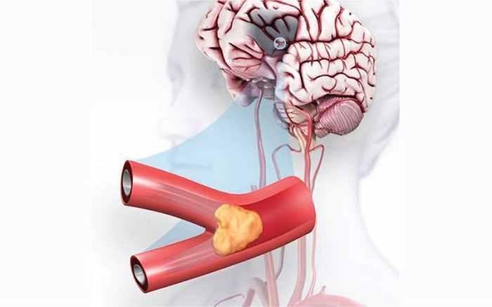 درمان و توانبخشی سکته مغزی ایسکمیک (انسدادی) حاد و گذرا