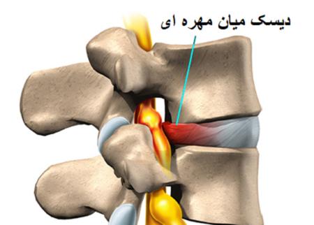 درمان کایروپراکتیک برای دیسک میان مهرهای