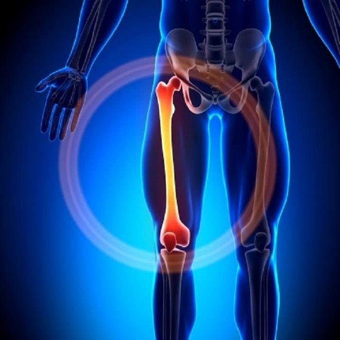 سیاه شدن سر استخوان ران(نکروز)با فیزیوتراپی،شنا و پلاسمای غنی خون