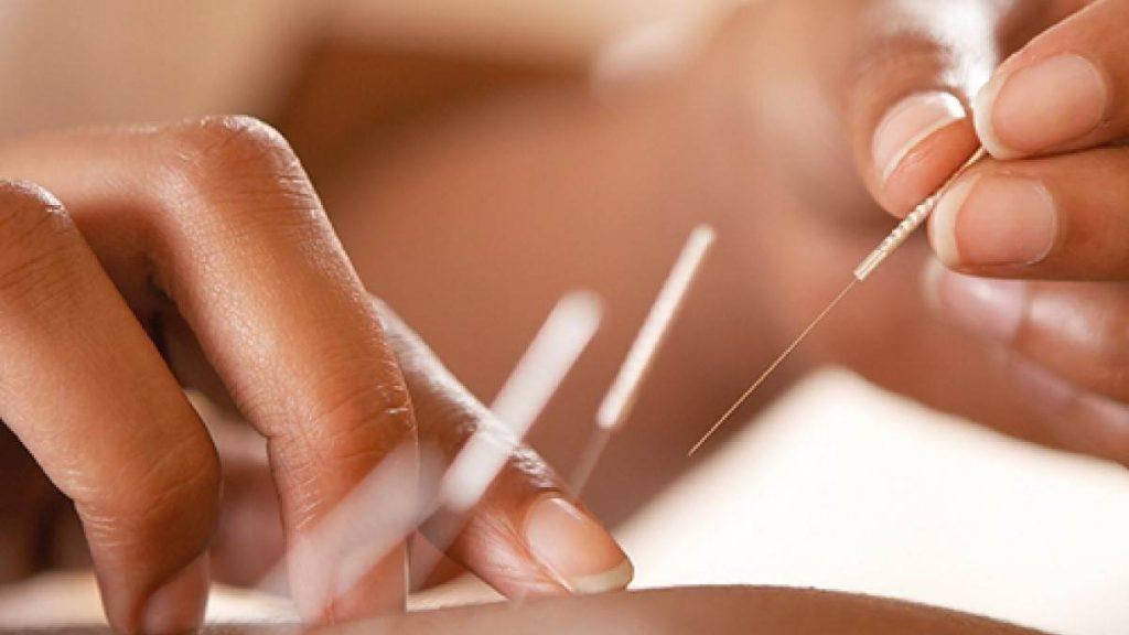طب سوزنی در فیزیوتراپی برای درمان چه عارضه هایی کاربرد دارد؟