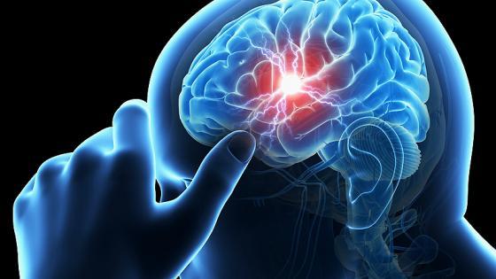 علائم و نشانههای سکته مغزی هموراژیک چیست؟