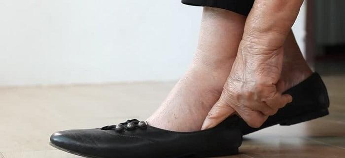 علل ورم کردن هر دو پاها چیست؟
