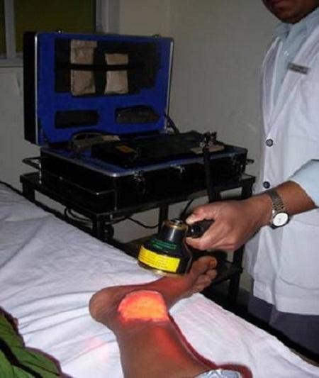 لیزر درمانی