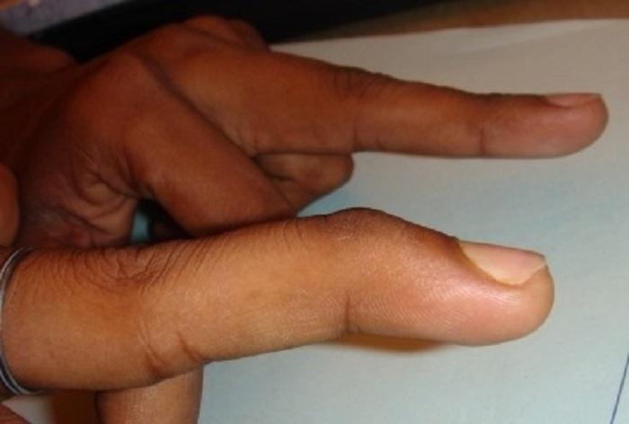 مالت فینگر(انگشت چکشی) و درمان سفتی،بی حرکتی،شکستگی و درد انگشتان