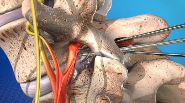 عمل جراحی میکرودیسککتومی