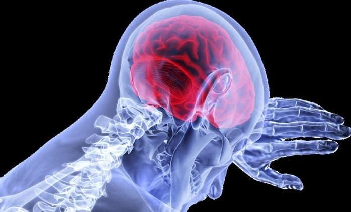 نکات و روشهای درمان سکته مغزی خفیف و شدید