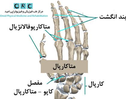 ه-قسمتهایی-از-مچ-دست-درگیر-میشود