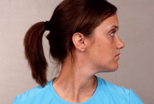 چرخش گردن برای درمان گردن درد
