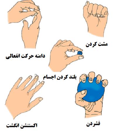 چه تمریناتی برای انگشت مالت انجام میشود؟