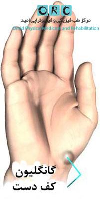 کیست-گانگلیون-درکف-دست