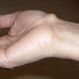 درمان کیست گانگلیون مچ دست با آسپیراسیون و توانبخشی پس از جراحی