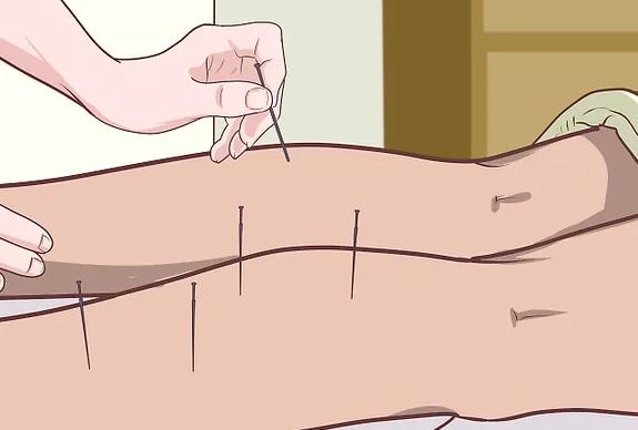 متخصص طب سوزنی
