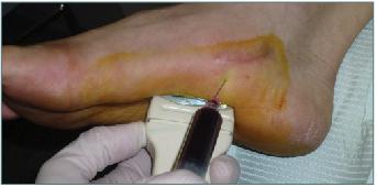 پی آر پی درمانی